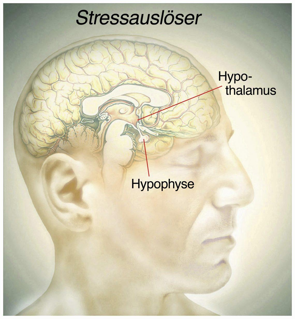 Stress wird durch falsche Gedanken im Gehirn ausgelöst