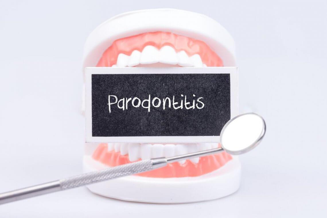 Gebissmodell mit Schild Parodontitis